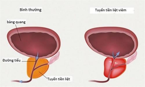 Viêm tuyến tiền liệt mãn tính và cách điều trị