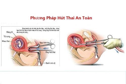 Tuy-thuoc-vao-tuoi-thai-co-the-pha-thai-bang-thuoc-hay-nao-hut-thai