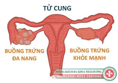 Đa nang buồng trứng là gì dấu hiệu và cách điều trị