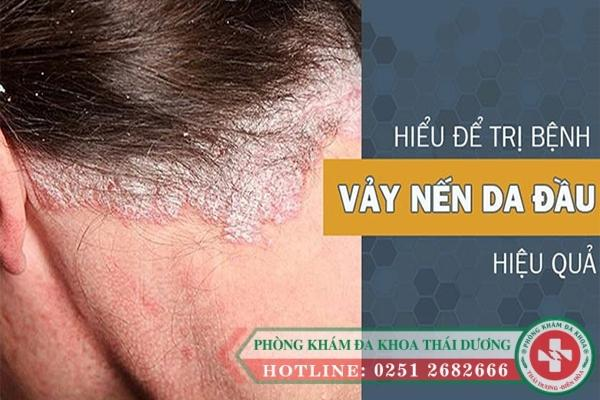 Chữa trị vẫy nến da đầu bằng phương pháp nào?