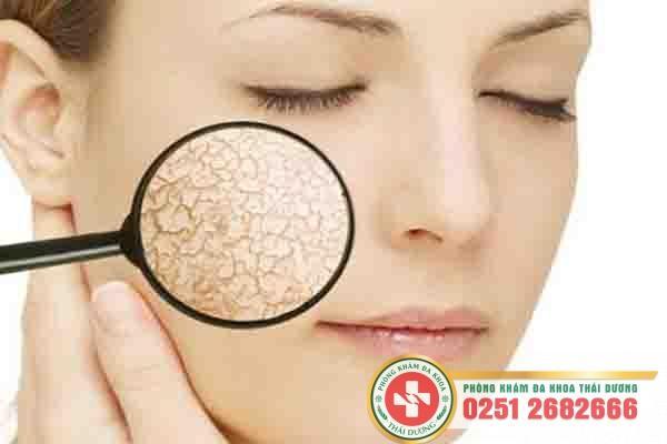 Da mặt bị sần sùi là như thế nào phải làm sao?