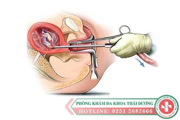Quy trình nạo thai tại Phòng khám đa khoa thái dương